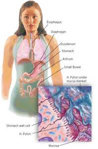 Stomach Diagram Peptic Ulcer