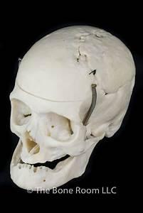 Real Human Skulls for Sale- The Bone Room