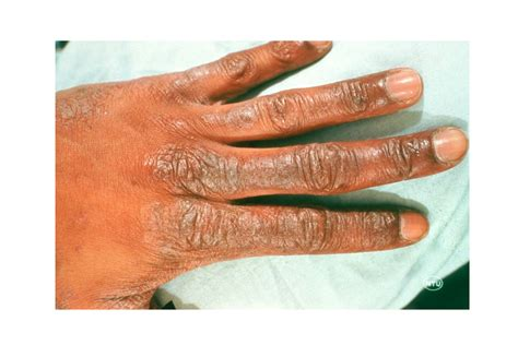 Whats That Rash How To Id Common Rash Symptoms Reader