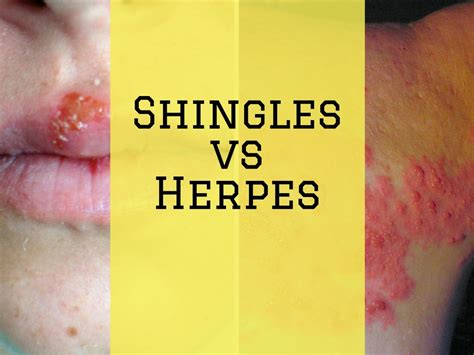 Difference Between Shingles And Herpes Is Shingles A