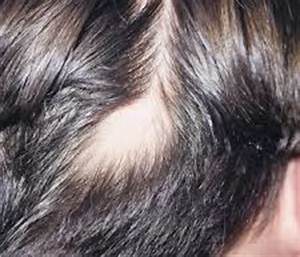 Alopecia Areata Hair Loss With Small Oval Patches On