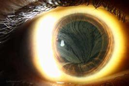 items eyeroundsorg  ophthalmic atlas