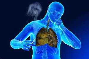 Respiratory Diseases A Term Used To Define The Abnormal Or
