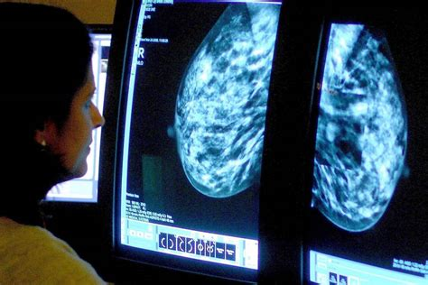 false positive mammogram result  point  higher risk