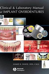 Testbank For Clinical And Laboratory Manual Of Implant