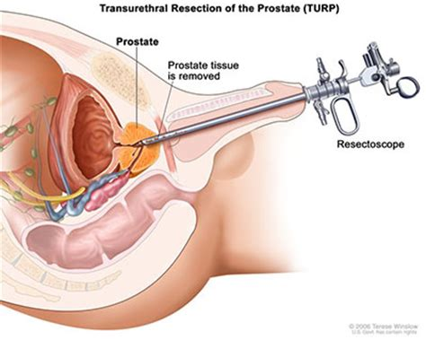 can light inserts urology care foundation surgery
