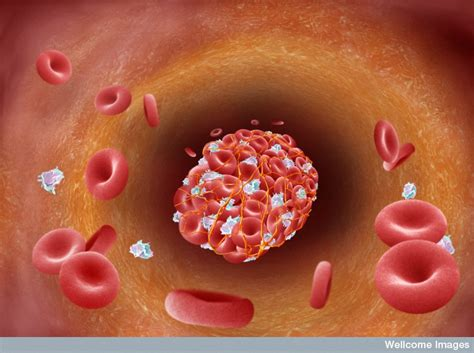 B0008077 Blood clot forming in arterial plaque Wellcome