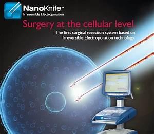 Irreversible Electroporation  Ire  With Nanoknife