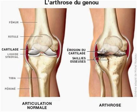 marche nordique fitness plein air marly le roi arthrose du genou marcher limite les risques