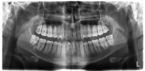 dental rays dentistry tooth bristol smiles mouth parts placement bottom