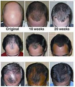 how effective are steroid injections for alopecia