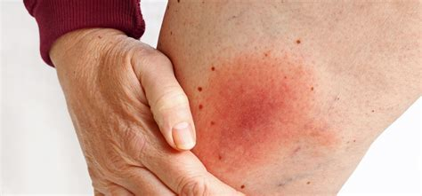 Five Fast Facts About Cellulitis (Skin Infections ...