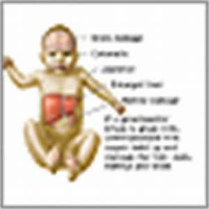 Galactosemia: MedlinePlus Medical Encyclopedia