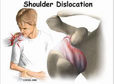 Shoulder Dislocations eOrthopodcom
