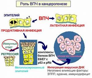 Лечение вируса папилломы 18 у женщин