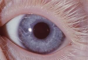 Albinism, Oculocutaneous; Albinism, Tyrosinase-Negative ...