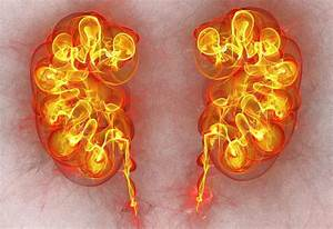 Kidney Disease Gene Test Advances Personalized Medicine