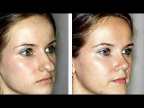 (855) 6224466 Best Rhinoplasty Surgeon Burlington Vt. United Healthcare Medicare Hmo. San Diego Medical Malpractice Attorneys. Window Display Advertising French To Englihs. What Is An Eye Doctor Called. Scholarships For Christian Colleges. Ms In International Business. Employee Payroll Software Dallas Glass Repair. Appliance Repair Boston Landing Page Download