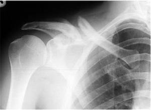 Image Gallery normal clavicle x ray