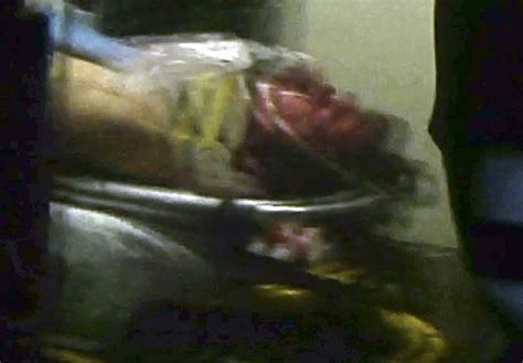 Boston bomb suspect hospitalized under heavy guard - The ...