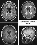 Псориаз и рассеянный склероз