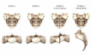 Sacral stress fracture in runners: a sneaky cause of low ...