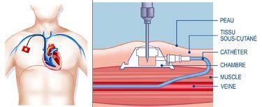 pose d une chambre implantable glossaire médical chambre implantable port à cath