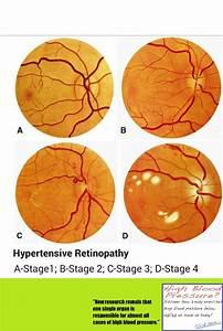 Hypertensive Retinopathy Stages                Optometry