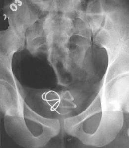 Ray Of The Pelvis Showing Coiled Up Wire In Urinary