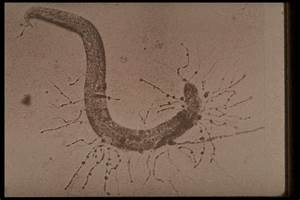 Consumption Of Nematodes  Some Fungi Trap Nematodes With Constricting Rings Or Adhesive Nodes