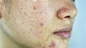 Is Popping Pimples Bad For You