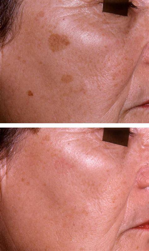 pigmentation removal  aesthetic medicine
