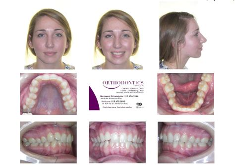 Invisalign Before And After Invisalign Reviews Philadelphia
