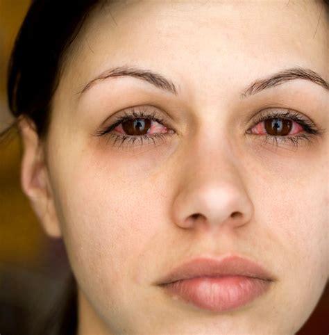 bindehautentzuendung symptome dauer der infektion