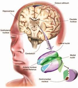 Brain Stimulation For The Treatment Of Epilepsy