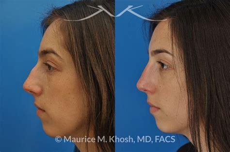 nyc nose hump correction surgery  york dorsal hump