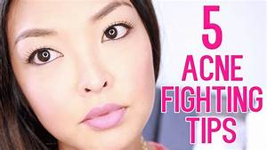 How To  Get Rid Of Acne Scars  U0026 Pimples
