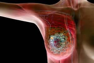 Cancer Symptoms: Breast Cancer Symptoms Treatment - Breast Cancer ... Breast Cancer