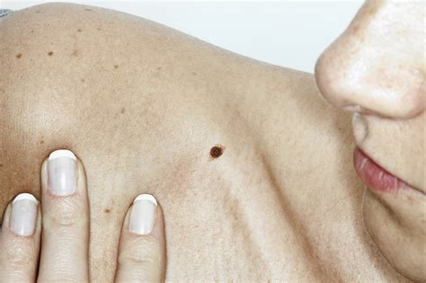 What You Need To Know About Skin Cancer And How To