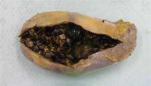 Gallstones And Cholecystitis