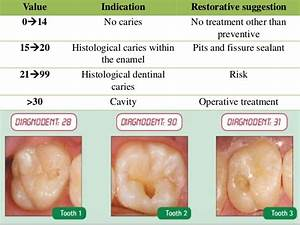Related Keywords & Suggestions for early cavity