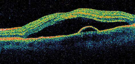 central serous chorioretinopathy imaged  optical