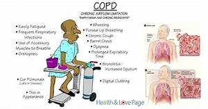 13 Natural Treatments For Chronic Obstructive Pulmonary