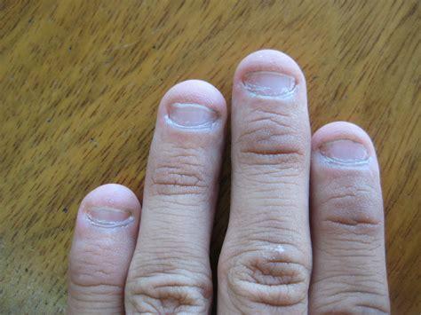 Nail Biting Deformation