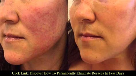 best for rosacea how to care for skin with rosacea shopping physics