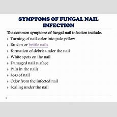 Ppt  Fungal Nail Infection Causes, Symptoms, Diagnosis