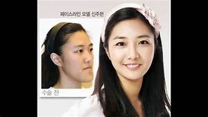 Korean Plastic Surgery – Celebrities Before & After - YouTube
