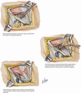 Femoral Hernia Repair