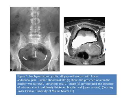 urogenital infections   icu uti cystitis
