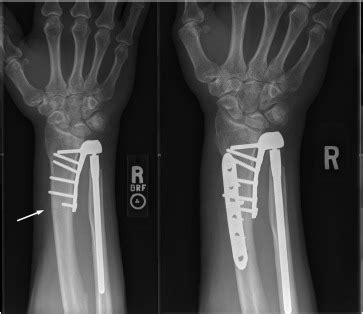 complications  aptis druj arthroplasty journal  hand surgery